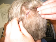 Yes, those are stitches!